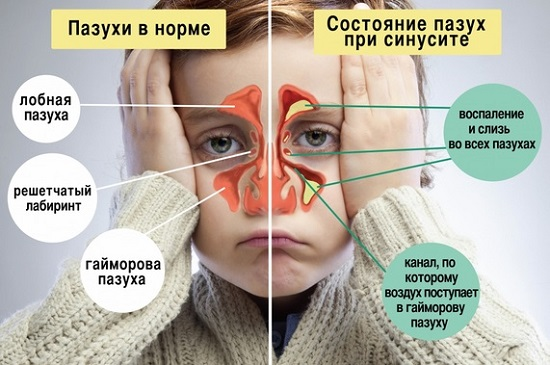 состояние пазух у ребенка