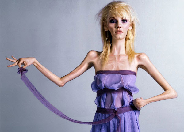 Причины анорексия