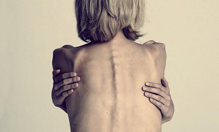 Расстройство пищевого поведения – Нервная анорексия