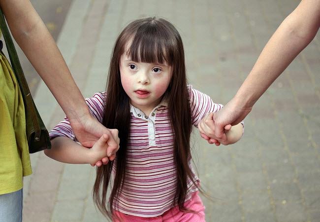 девочка болеет олигофренией