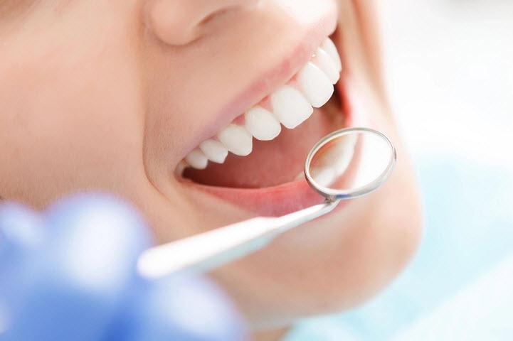 Отбеливание зубов: особенности процедуры и виды