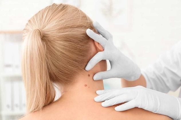 дерматолог осматривает девушку
